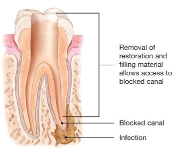 درمان مجدد ریشه دندان