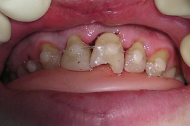 دندان آسیب دیده ( تروماتیک )