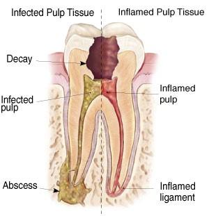 دندان درد پس از عصب کشی و درمان ریشه دندان