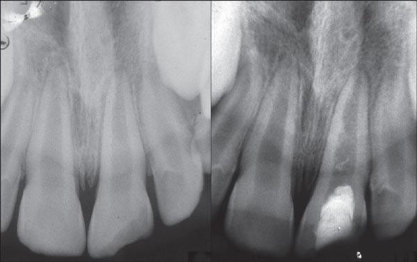 ترمیم و عصب کشی دندان کودکان