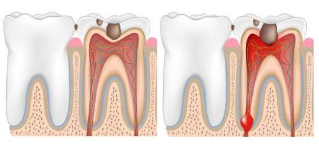 شکل- در تصویر سمت چپ پالپیت برگشت پذیر و تصویر سمت راست پالپیت برگشت ناپذیر نشان داده شده است.