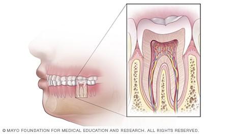 درمان ریشه دندان در خارج از دهان ( اپیکواِکتومی )