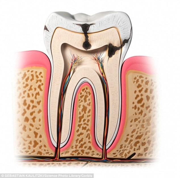 بیماریهای پالپ دندان
