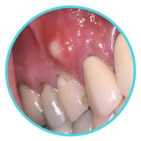 شکل- آبسه تشکیل شده در نوک ریشه دندان