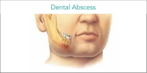 شکل- آبسه نوک ریشه دندان