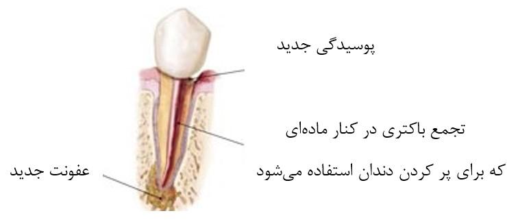 روکش دندان پس از درمان ریشه
