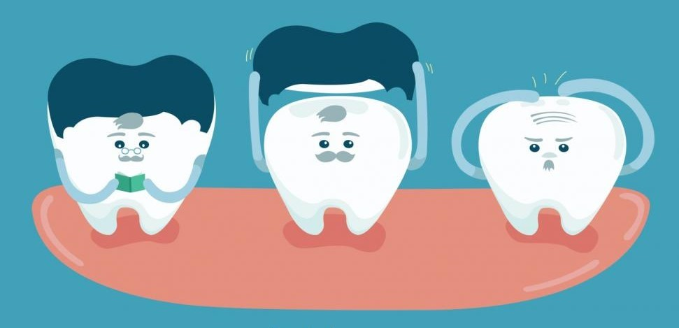طول عمر دندان عصب کشی شده