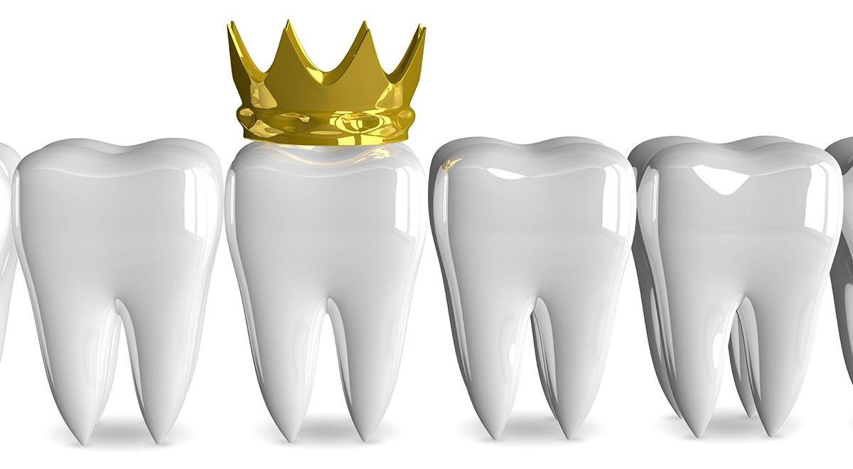 مزایا و معایب روکش دندان
