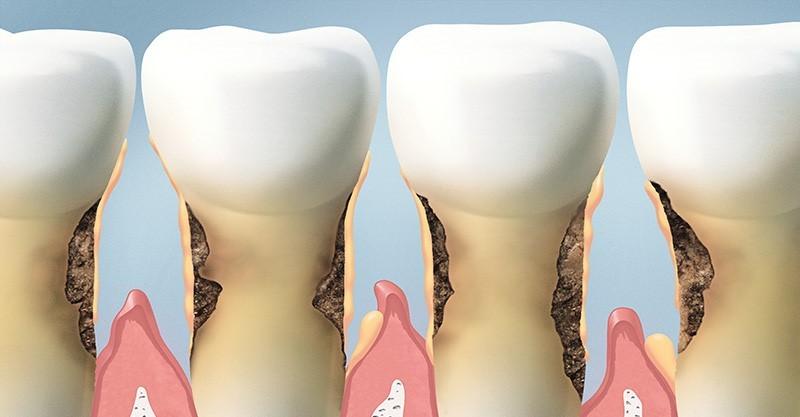 تحلیل استخوان فک و دندان