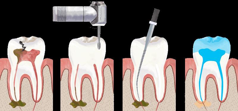 عصبکشی یا درمان ریشه دندان