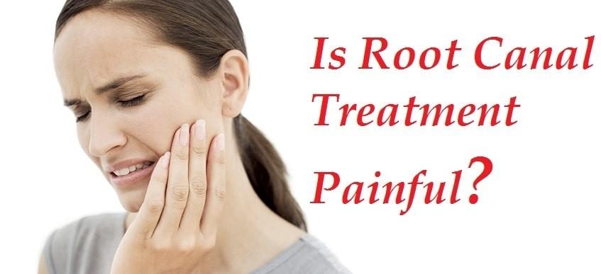 باورهای نادرست درباره عصب کشی و درمان ریشه