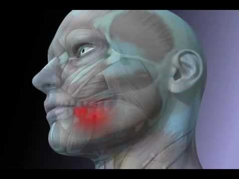 مواد مورد استفاده در درمان ریشه (عصب کشی)