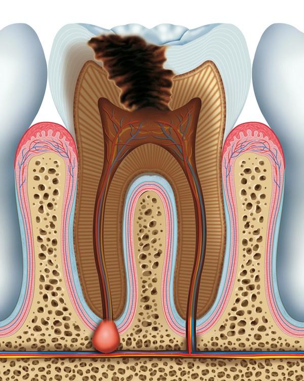 عفونت دندان برگشت پذیر