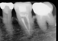 تعداد ریشه و کانال های دندان