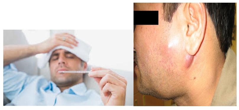 علائم نیاز دندان به درمان ریشه (عصب کشی)