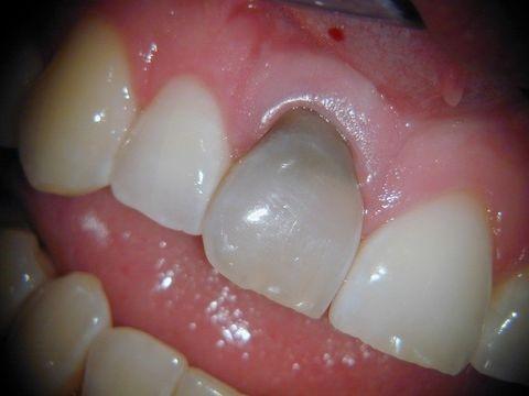 دندان های آبی یا خاکستری رنگ