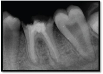 پولیپ دندان
