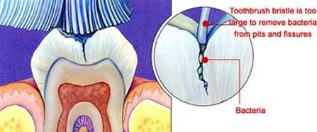 فیشور سیلانت یا شیار پوشی دندان