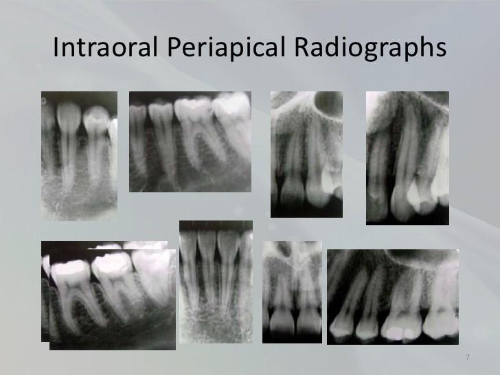 تصاویر رادیوگرافی و درمان ریشه