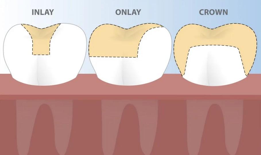 اینله و آنله و روکش دندان