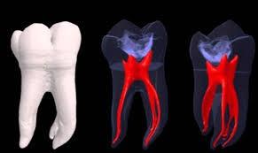 سلول های بنیادی و درمان ریشه دندان
