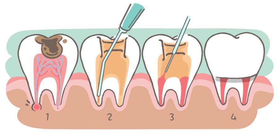 از بین رفتن (مرگ) دندان