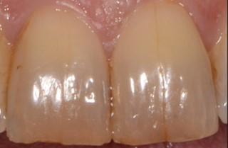 ترک و شکستگی دندان