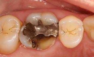 انواع ترک و شکستگی دندان