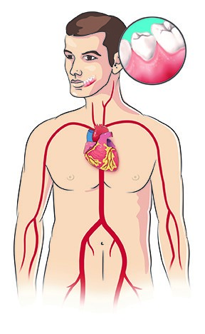 سلامت دهان و خطرات بیماری های قلبی و عروقی