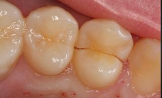 انواع ترک و شکستگی دندان – بخش دوم