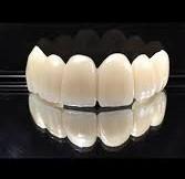 جایگزین دندان های از دست رفته