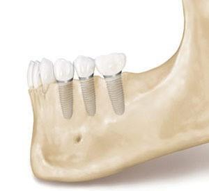 ایمپلنت بهترین جایگزین برای دندان های از دست رفته