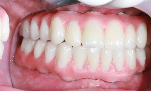 پروتز بر پایه ایمپلنت دندانی