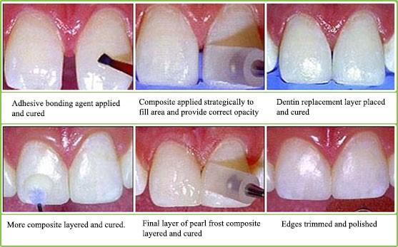 باندینگ دندان