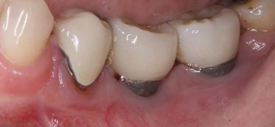 ارتباط بوی بد دهان با ایمپلنت ها و پروتزهای دندانی