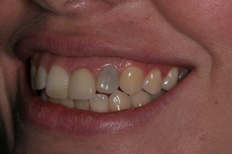 تغییر رنگ دندان پس از آسیب و حادثه