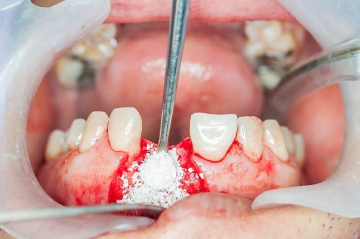 پیوند استخوان برای کاشت ایمپلنت
