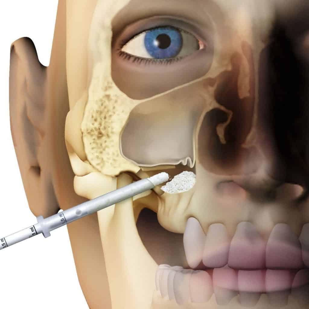 لیفت سینوس ایمپلنت های دندانی