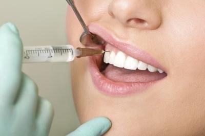 بی حسی موضعی و بیهوشی عمومی در دندانپزشکی