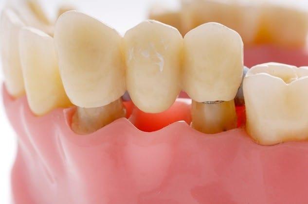 بریج دندانی و ایمپلنت دندانی
