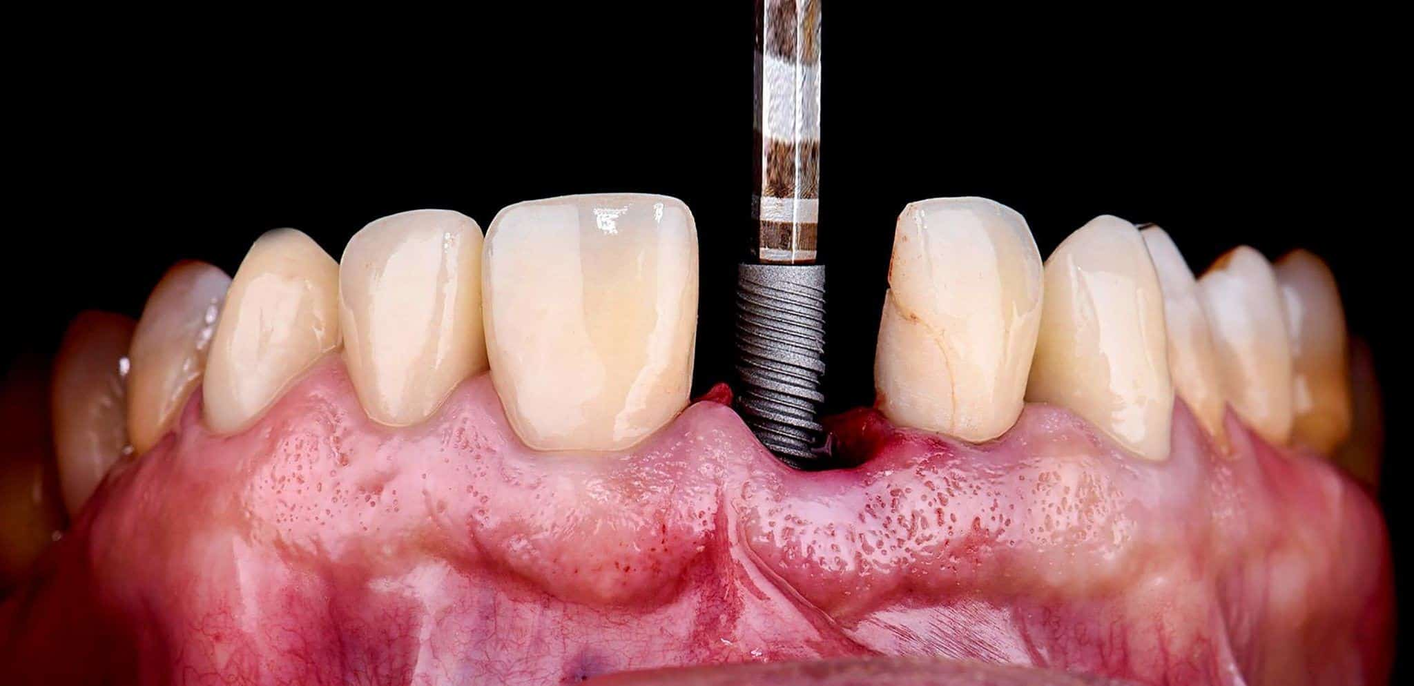 بهترین سن برای کاشت ایمپلنت دندان