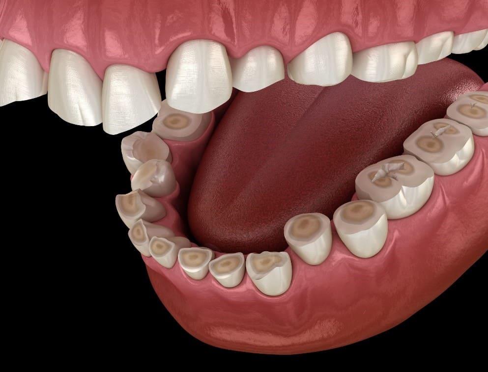دندان قروچه و دندان درد